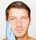 man HR injectables